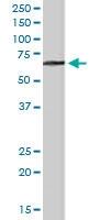 PAB6061 - Myotubularin / MTM1