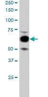 PAB6095 - Cyclooxygenase 1