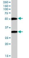 PAB6124 - TMPRSS5 / Spinesin