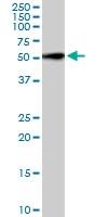 PAB6230 - Follistatin-related protein 1