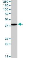 PAB6368 - Sorting nexin-16 (SNX16)