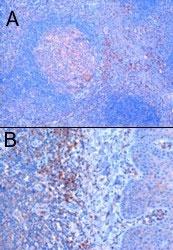 PAB6383 - TRIM5 / RNF88
