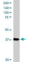 PAB6489 - Renin receptor