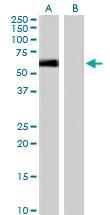 PAB6532 - Syntrophin-1 / SNTA1
