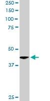 PAB6617 - Centractin alpha