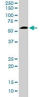 PAB6665 - 58K Golgi Protein