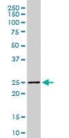 PAB6717 - Synaptogyrin-2 / SYNGR2