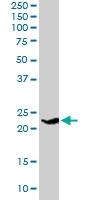 PAB6719 - Synaptogyrin-4 / SYNGR4