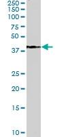 PAB6725 - Alcohol dehydrogenase 1A / ADH1