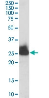 PAB6740 - Triosephosphate isomerase (TPI1)