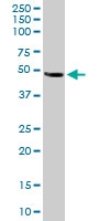 PAB6763 - Neuroserpin / SERPINI1