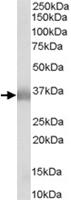 PAB6765 - Apolipoprotein E / Apo E