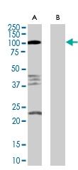 PAB6793 - Nogo 66 receptor