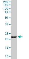 PAB6817 - Glutathione peroxidase 2 / GPX2