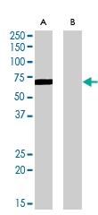 PAB6867 - Amine Oxidase A
