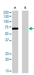 PAB6867 - Amine Oxidase A / MAOA