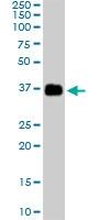 PAB6868 - Apolipoprotein J / Apo J