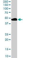 PAB6871 - Beta-2 adrenergic receptor