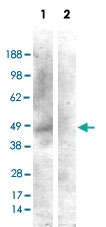 PAB6876 - Cannabinoid receptor 1