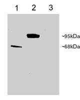 PAB6924 - PDE4D