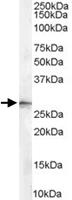 PAB6932 - 14-3-3 protein sigma / SFN