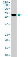 PAB6982 - Sorting nexin-9 (SNX9)