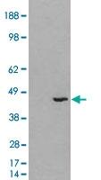 PAB7013 - 3-beta-HSD1 / HSD3B1