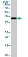 PAB7020 - Casein kinase I delta
