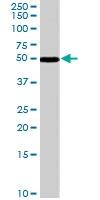 PAB7042 - Chromogranin A