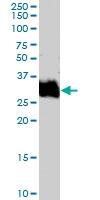 PAB7046 - Fos-related antigen 1