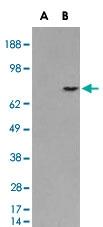 PAB7056 - Melanoma gp100