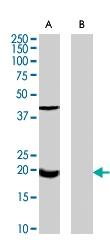 PAB7067 - Glutathione peroxidase 7 / GPX7