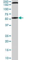 PAB7069 - Serotonin receptor 3A (HTR3A)