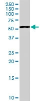 PAB7070 - WT1 / Wilms tumor protein