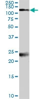 PAB7074 - NMDA Receptor 1