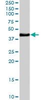 PAB7119 - NHEJ1 / Protein cernunnos