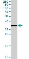 PAB7132 - Syntenin-1 / SDCBP