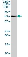PAB7176 - Fatty acid desaturase 1 (FADS1)