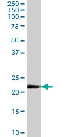 PAB7226 - KLK2 / Kallikrein-2