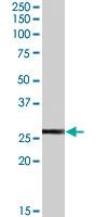 PAB7230 - Glutathione peroxidase 3 / GPX3