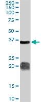 PAB7237 - Arginase-1