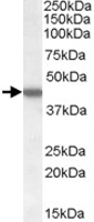 PAB7264 - Casein kinase I epsilon