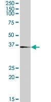 PAB7270 - Tachykinin receptor 1 (TACR1)