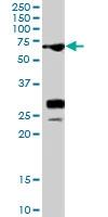 PAB7278 - Sal-like protein 4 (SALL4)