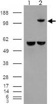 PAB7317 - Insulin-degrading enzyme
