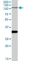 PAB7318 - Insulin-degrading enzyme