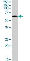 PAB7358 - Vitamin D-binding protein
