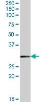 PAB7360 - Tumor protein D54 (TPD52L2)