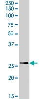 PAB7361 - Tumor protein D53 (TPD52L1)