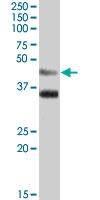 PAB7369 - Arylsulfatase B